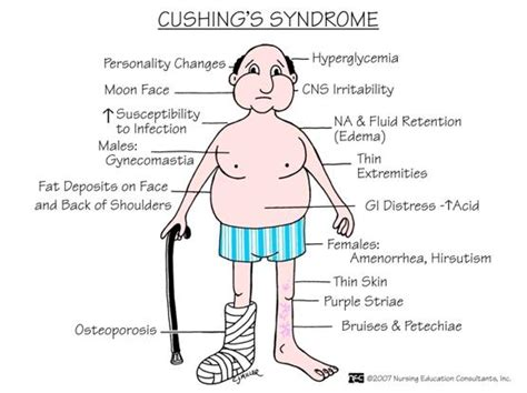 cushings and decreased libido picture 10