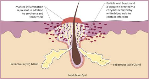 acne care capsule picture 14