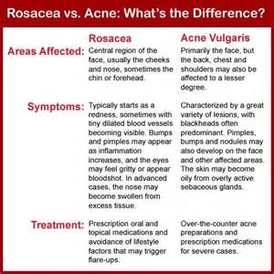 ultraviolet treatment for acne rosacea picture 1