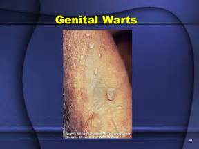genital warts male doctor picture 5