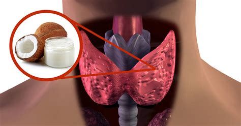 coconut oil for thyroid health picture 7