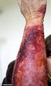 cream they use on burn victims picture 9