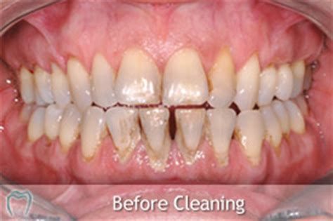 calcium deposit on teeth picture 7