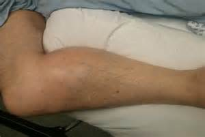 lump in leg muscle picture 15