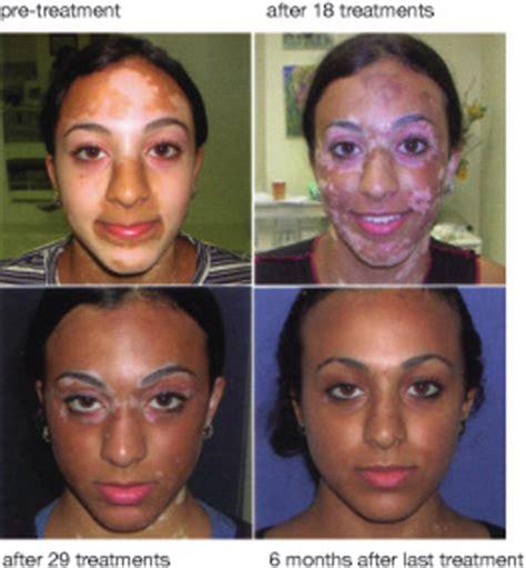skin care for vitaligo picture 10