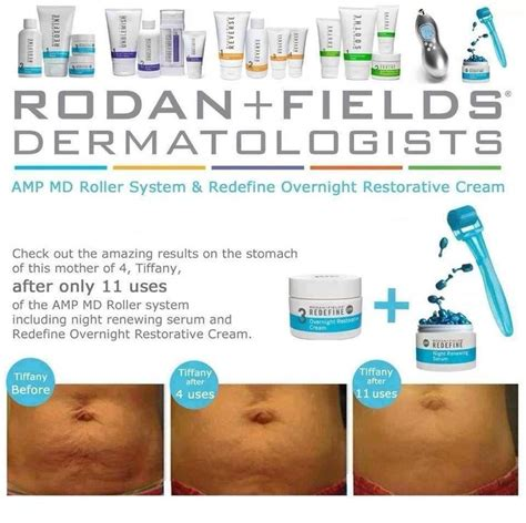 rodan+fields amp pro for stretch marks? picture 7