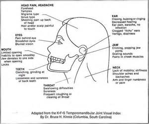 ear ache and neck pain picture 2