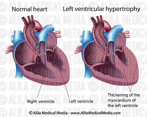 centimeter thickening of heart muscle picture 10