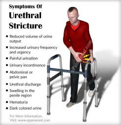 urethral stricture relief picture 6