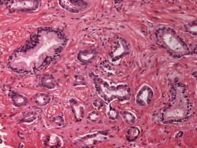Tnm1 prostate picture 2