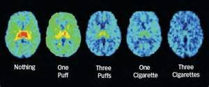how to cleanse the brain with smoke picture 9