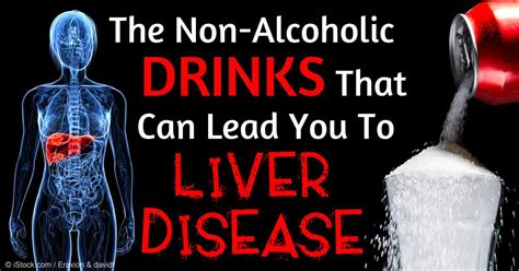 alcoholic fatty liver disease symptoms picture 10