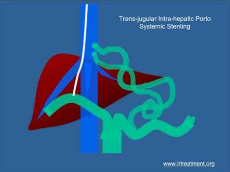 cirrosis of the liver picture 9