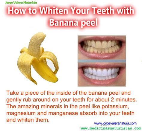 best over the counter ways to whiten teeth picture 6