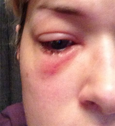 herpes on a woman pictures picture 5