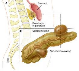 cysts on pancreas liver and stomach picture 14