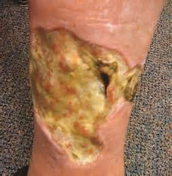 any acute, inflammatory, pus-forming bacterial skin infection, such picture 19