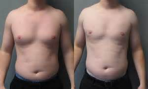 male enlarged breast treatment picture 2