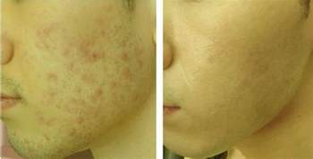 stop acne pit from being a.scar picture 5