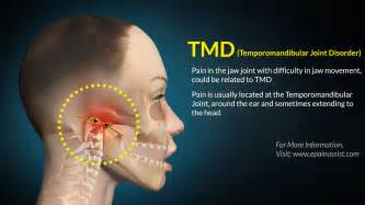 temporomandibular joint syndrome picture 1