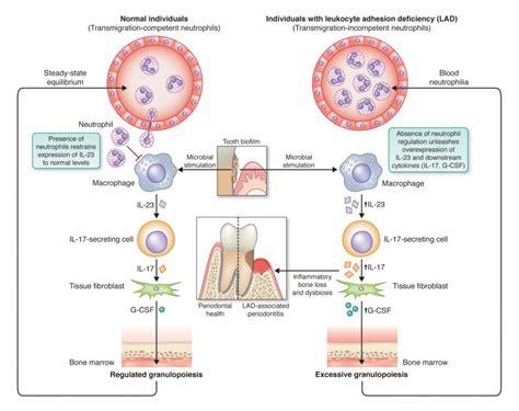 what autoimmune disease causes high neutrophils picture 12