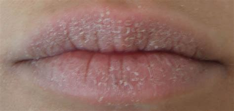 lip infections picture 11