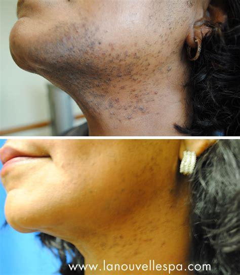 ventura ca. hair removal picture 2