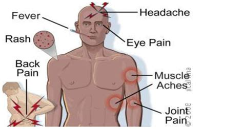headache muscle ache and fever picture 1