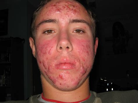 adderall and skin picture 7