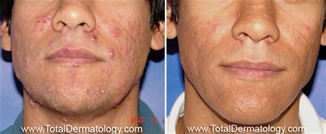 boston doctors that specialize in acne care picture 10
