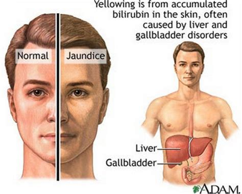 liver pain where is it picture 13