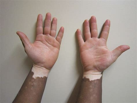 white spots on skin normal blood pressure picture 14