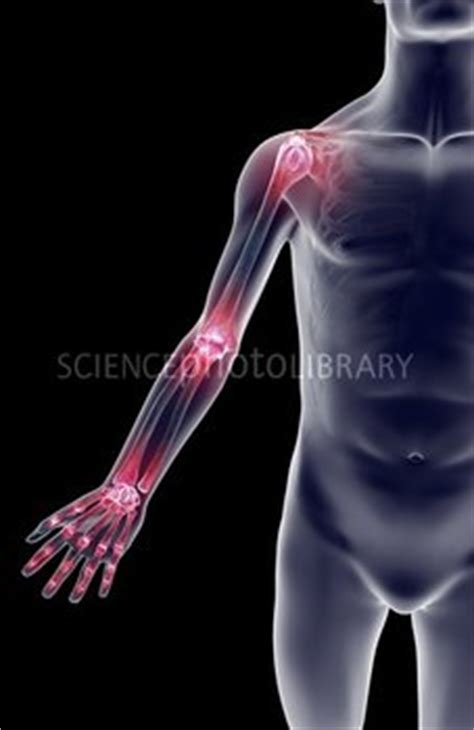 armor and joint pain picture 3