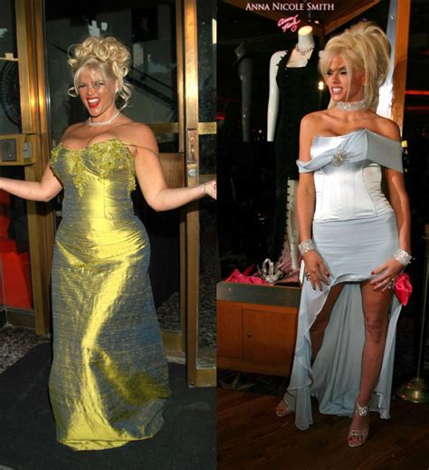 anne nicole smith weight loss picture 2