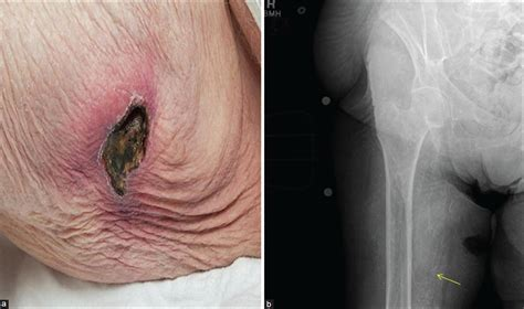 skin color in end stage renal disease picture 7