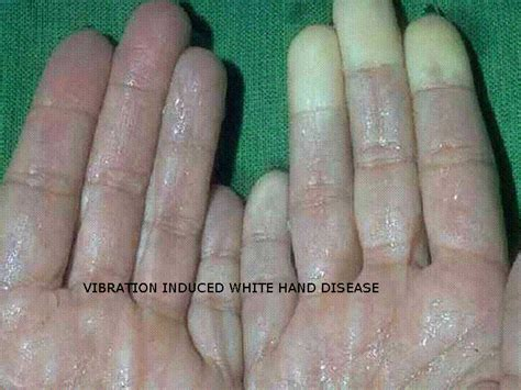 what are bad-smelling warts picture 15