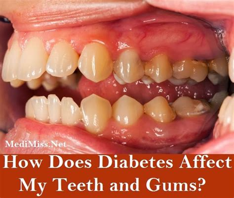 drugs affect on teeth and gums picture 2