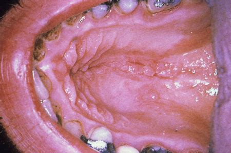 pictures of gential warts on mouth picture 6