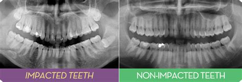 correcting impacted teeth picture 11