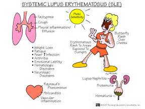 lupus and liver functions picture 17
