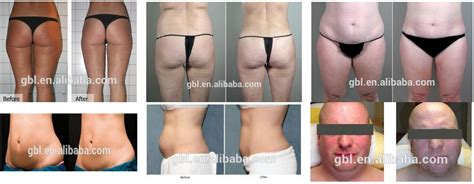 where to buy lipo 6 fat burning in picture 2