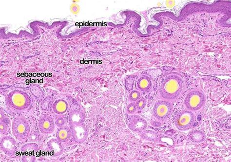Sebaceous glands lips picture 10