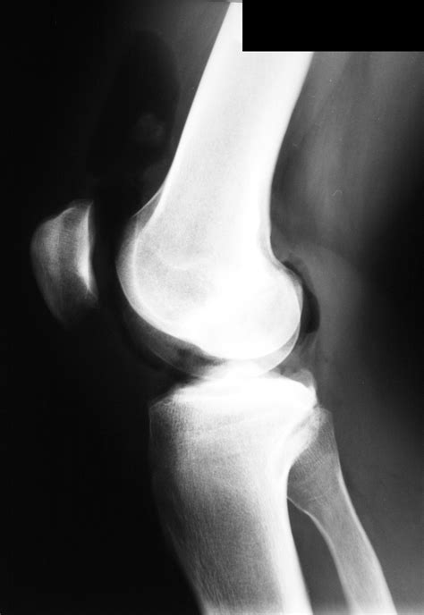 hip joint mice picture 6