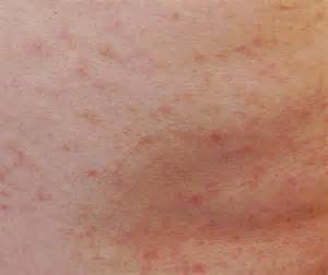 aids skin rash picture 10