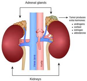 thyroid cancer metastasis to adrenal gland picture 5