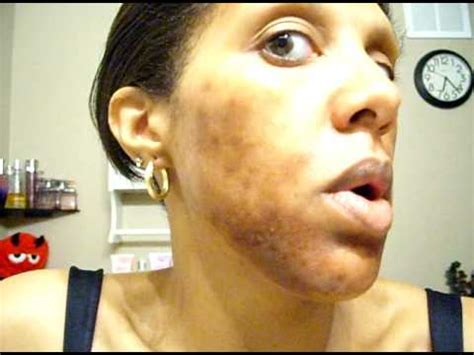 chemical ls on african american skin picture 5