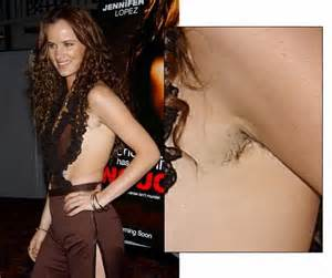 genital hair removal picture 3