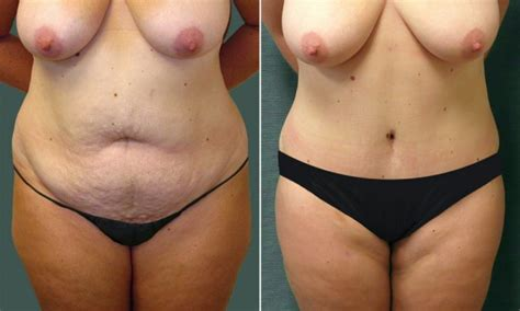 cosmetic surgery stretch mark removal picture 3