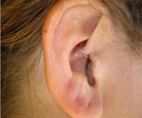 ear staple for weight loss picture 10
