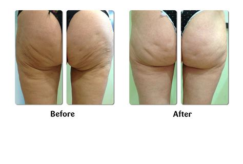 medical treatments for cellulite picture 5